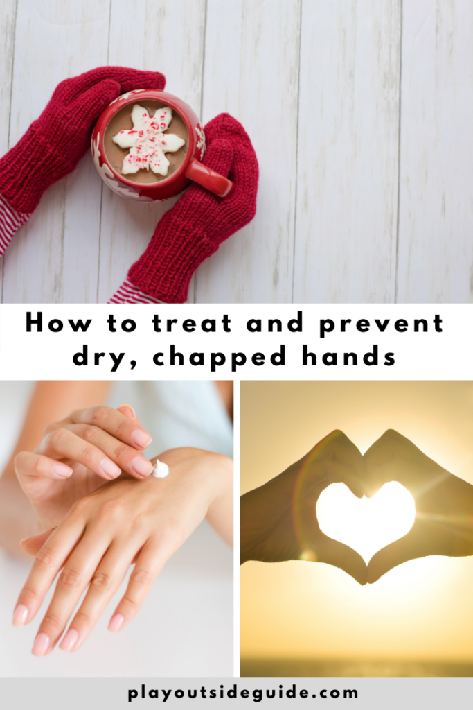how to treat and prevent dry chapped hands